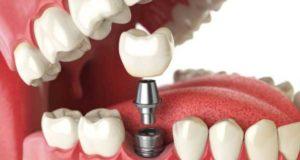 Выгода зубных имплантатов